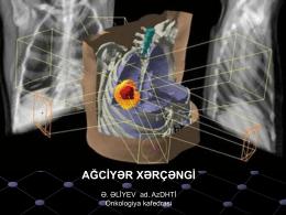 Akciğer Kanseri II