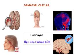intrakranial (subaraknoid) kanamalar