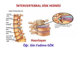 intervertebral disk hernisi