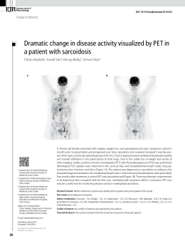 Dramatic change in disease activity visualized by PET in a patient
