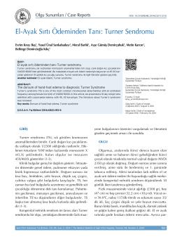El-Ayak Sırtı Ödeminden Tanı: Turner Sendromu