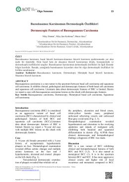 Bazoskuamoz Karsinomun Dermoskopik Özellikleri