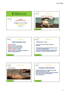 10.Sınıf 10.Hafta ( 17 – 21 / 11 / 2014 ) Çocuk Felci Çocuk Felci