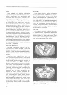 GİRİŞ Crohn hastalığı (CH) idiyopatik inflamatuvar