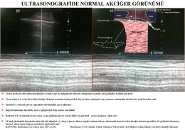Ultrasonografi ile normal akciğerlerin görünümünü