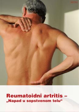 Reumatoidni artritis –