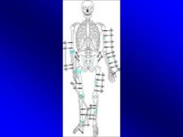 mehanizam na povreda