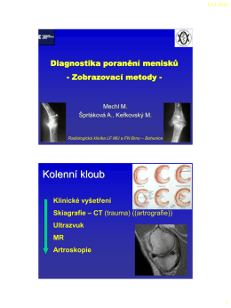 Mikulov 2012 - menisky (PDF - 0,70 MB)