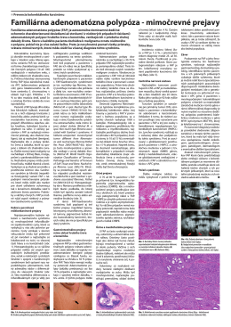 Familiárna adenomatózna polypóza