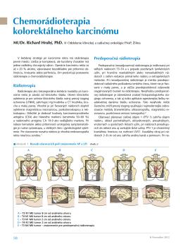 Chemorádioterapia kolorektálneho karcinómu