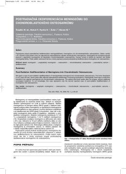 postradiačná dediferenciácia meningeómu do chondroblastického