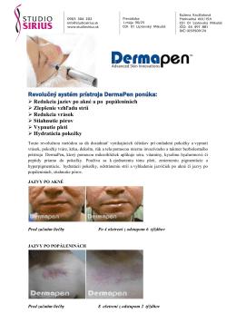 Revolučný systém prístroja DermaPen ponúka: