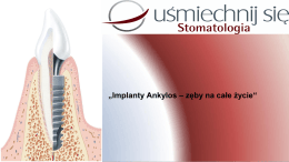 """""""Implanty Ankylos – zęby na całe życie"""""""