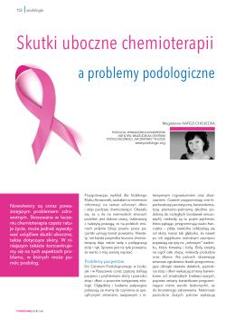 Chemioterapia a problemy podologiczne