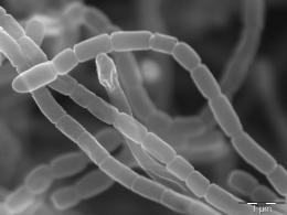 Elektronová mikroskopie v mikrobiologii