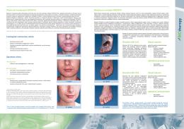Moderná fototerapia FOTONYX Biostimul a metóda FOTONYX
