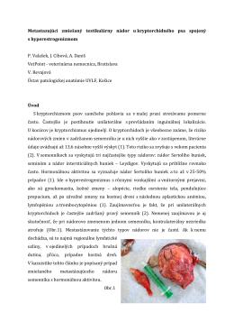 Metastazujúci zmiešaný testikulárny nádor u