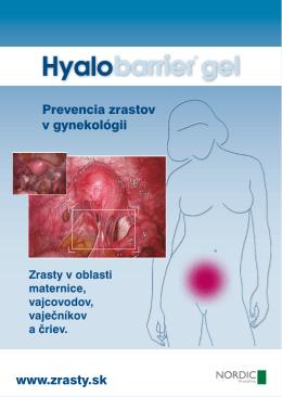 Prevencia zrastov v gynekológii www.zrasty.sk