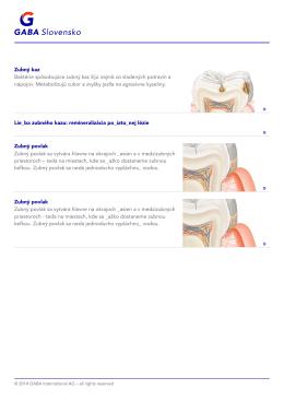Article=401399;- Liečba zubného kazu: remineralizácia počiatočnej lézie