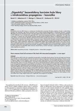 bazocelulárny karcinóm koĎe hlavy s intrakraniálnou propagáciou