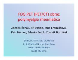 FDG PET (PET/CT) obraz polymyalgia rheumatica