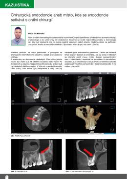 Chirurgická endodoncie aneb místo, kde se endodoncie setkává s