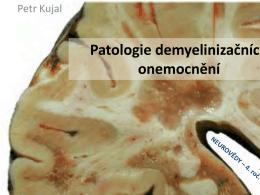 Patologie demyelinizačních onemocnění