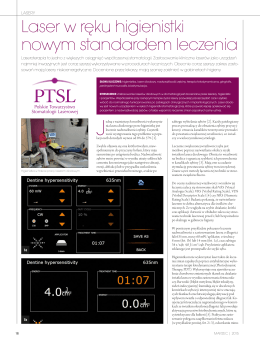 Laser w ręku higienistki nowym standardem leczenia