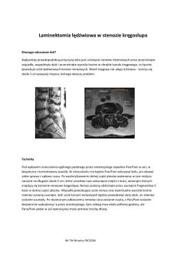 Laminektomia lędźwiowa w stenozie kręgosłupa