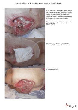 Odleżyna, pacjent ok. 87 lat. Odcinek kości krzyżowej, część