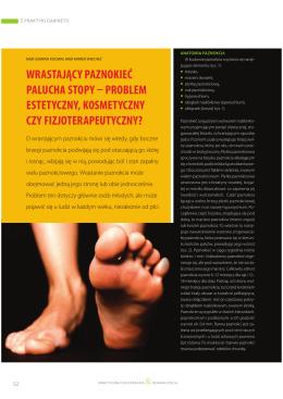 wrastający paznokieć palucha stopy problem estetyczny