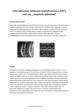"""Tylna lędźwiowa stabilizacja międzytrzonowa (""""PLIF""""), czyli tzw"""