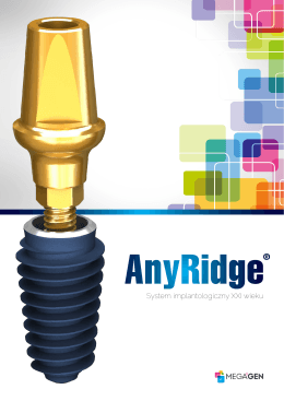 AnyRidge - schmidtdental