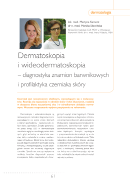 Dermatoskopia i wideodermatoskopia – diagnostyka