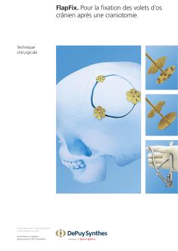 FlapFix. Pour la fixation des volets d`os crânien après une craniotomie.