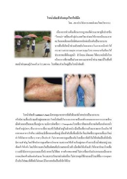 โรค กับสมุนไพรใกล้มือ - สถาบันวิจัยการแพทย์แผนไทย