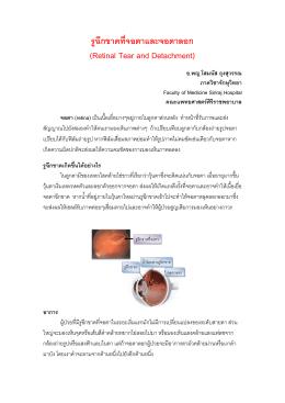 รูฉีกขาดที่จอตาและจอตาลอก (Retinal Tear and Detachment)