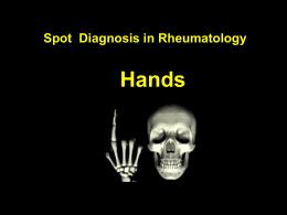 Hands Spot Diagnosis in Rheumatology ชาย 41 ปี มีก้อนที่นิ้วมือ โตขึ้น