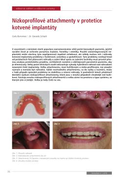 Nízkoprofilové attachmenty v protetice kotvené implantáty