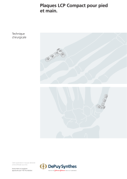 Plaques LCP Compact pour pied et main.
